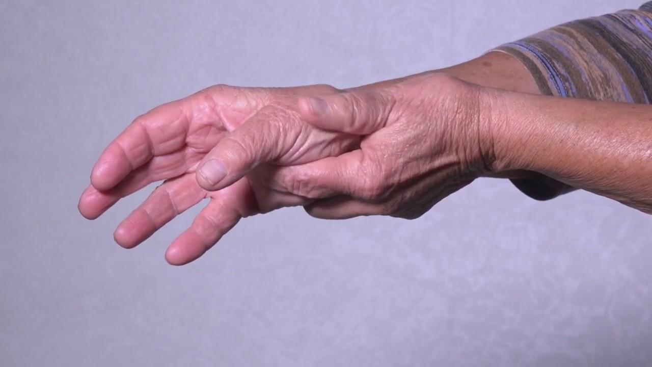 PA Live: Arthritis Awareness Month May 18, 2018